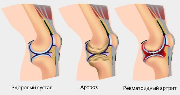 Как справиться с артритом в домашних условиях?